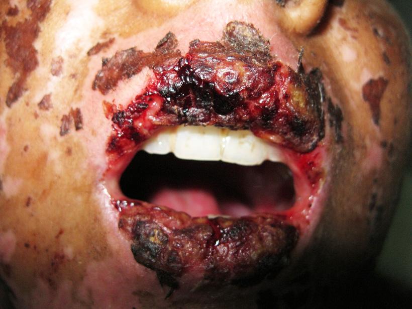 steven johnson syndrome causes pdf
