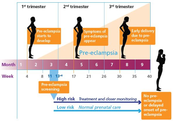PRE-ECLAMPSIA, WHAT WOMEN SHOULD AWARE OF? – DR IMAN ...
