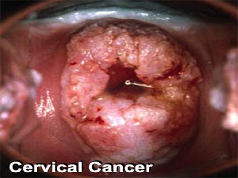 HPV-Treatment1