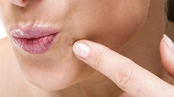 Human-Papillomavirus-Warts
