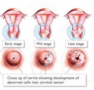 HOW CAN HUMAN PAPILLOMAVIRUS CAUSE CANCER? – DR IMAN FIRMANSYAH