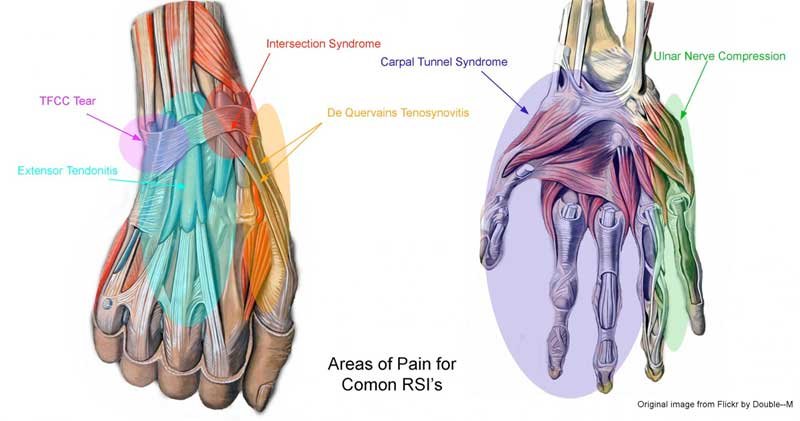 WHAT MAKES MUSICIANS PRONE TO REPETITIVE STRAIN INJURIES (RSI) ? | DR IMAN FIRMANSYAH