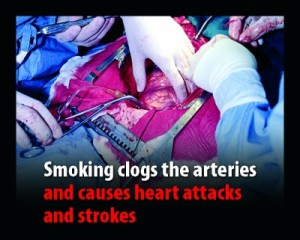 smoking_skeleton