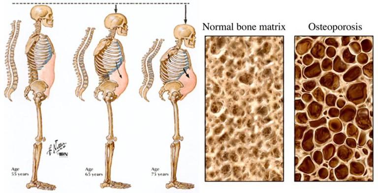 devosteoporosis