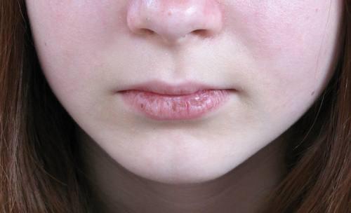 lipscrack