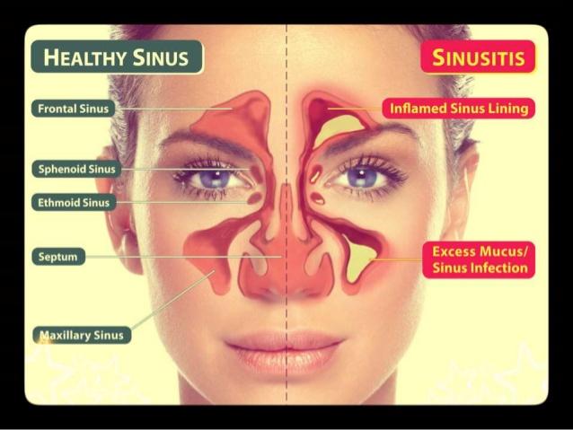 sinusitis-1-638